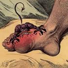 goutte orteil la goutte goutte du pied